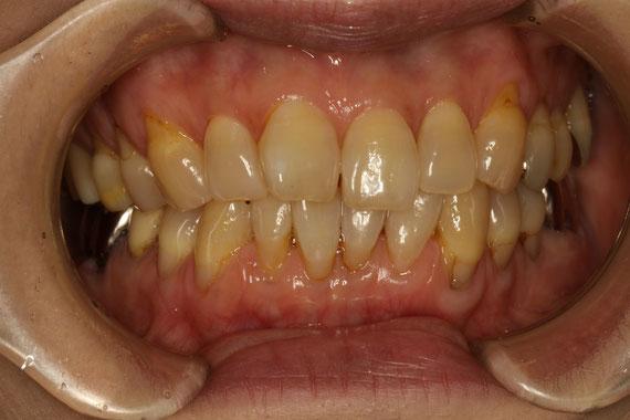 歯ぐきの再生前