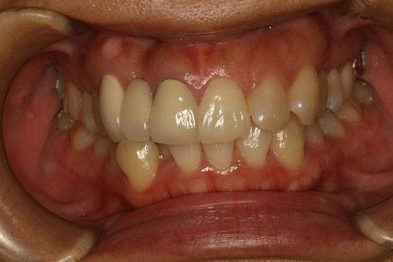 ブリッジの差し歯の歯茎