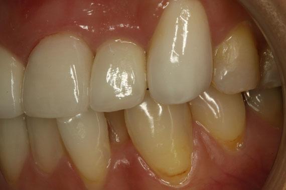 歯茎の下がりやすい部分