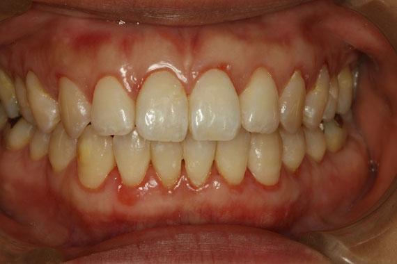 歯茎の退縮の治療