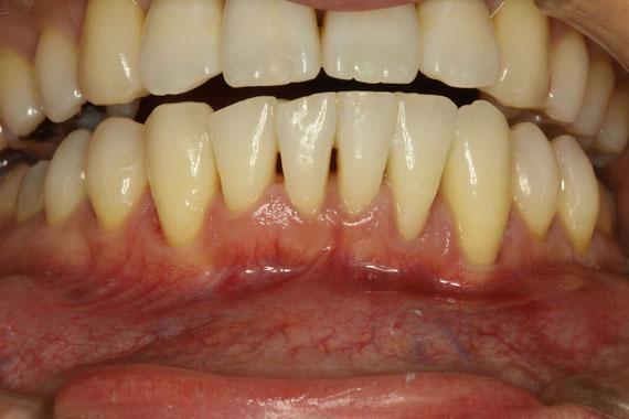 歯茎が下がった状態