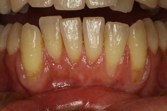 下の前歯の歯茎が下がる