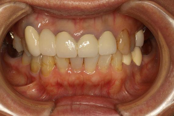 下がった歯茎に合わせて作成した差し歯