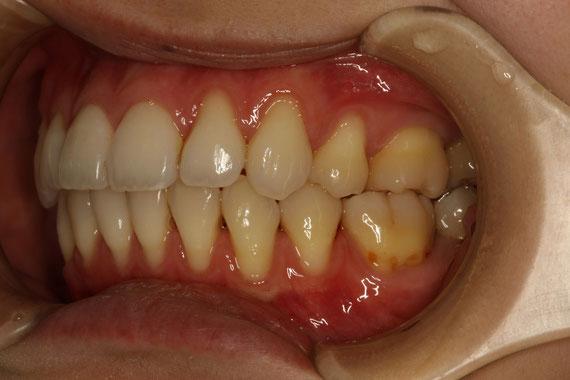 歯茎の退縮治療前