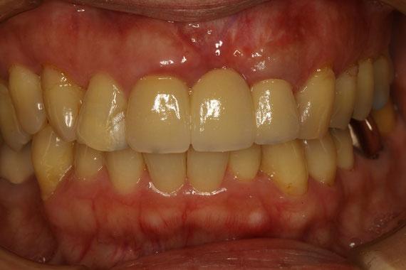 歯茎再生後に前歯のオールセラミック治療