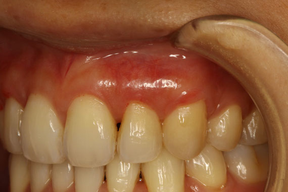 犬歯の歯茎の再生