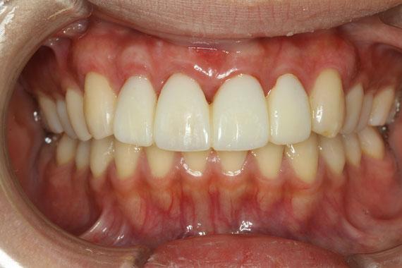 歯茎の再生後の状態
