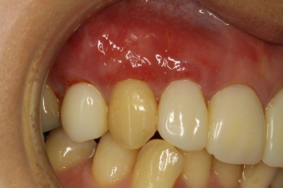 歯茎の再生1週後