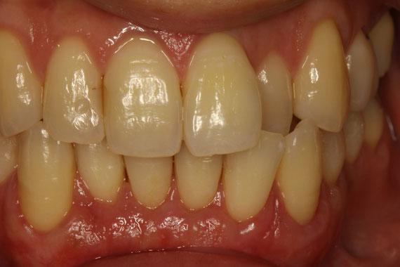矯正治療前の歯茎の再生