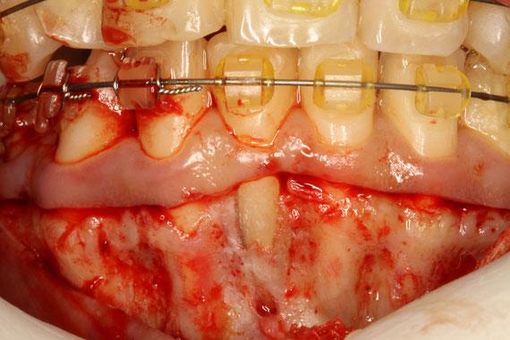 矯正中の歯周病