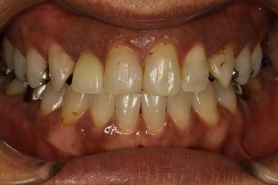 審美歯科治療前の歯茎が下がった状態