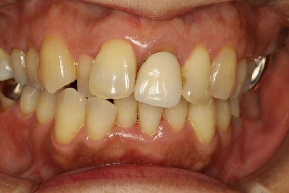 被せ物の歯茎が下がる