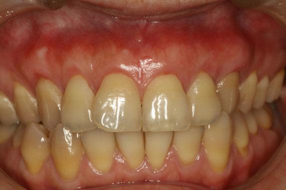 歯並びと歯茎の退縮 治療後