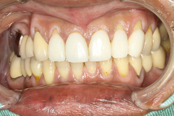 歯茎再生前