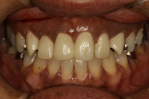 審美歯科と歯茎の再生