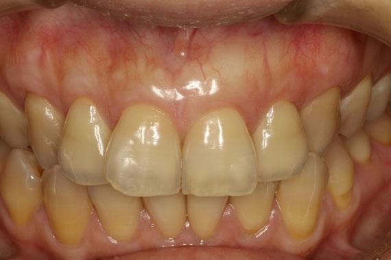 審美的な歯茎の再生法 治療後の状態