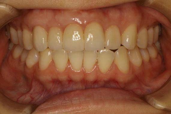 歯ぐきの再生と審美歯科で歯の長さをそろえました