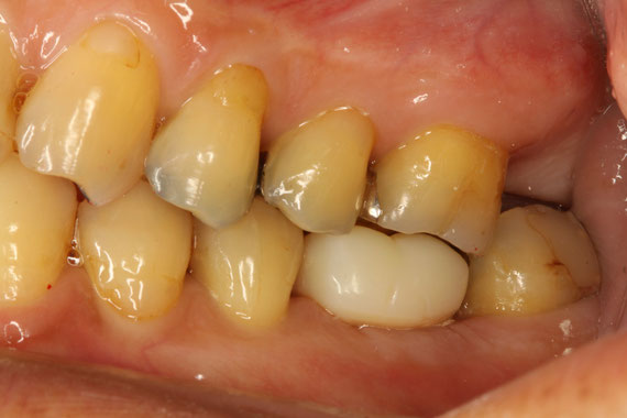 インプランと周囲の歯茎の移植