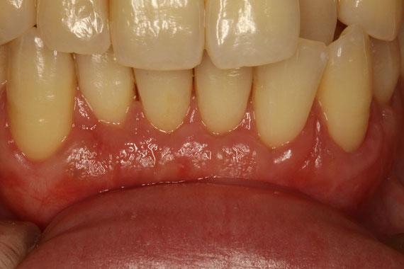 歯茎の再生