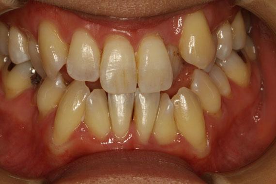 矯正前に歯茎の治療
