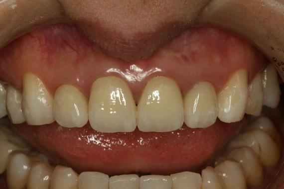 ほんの少し下がった差し歯の歯茎
