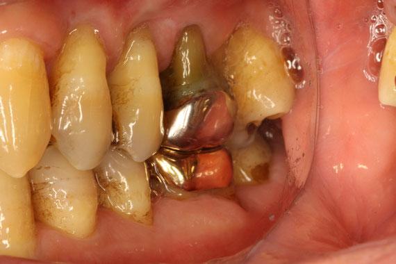 歯ぐきの再生が難しいケース