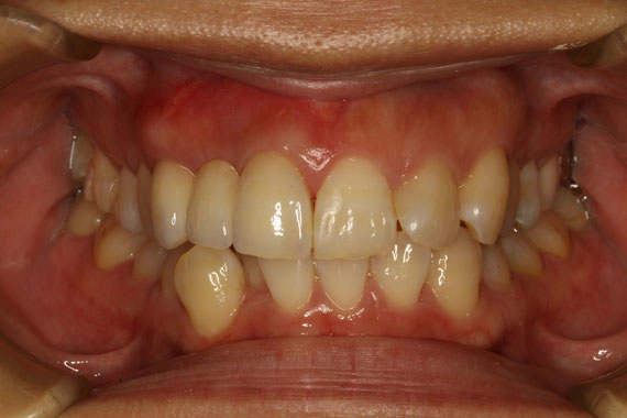 ブリッジの差し歯に歯ぐきの再生