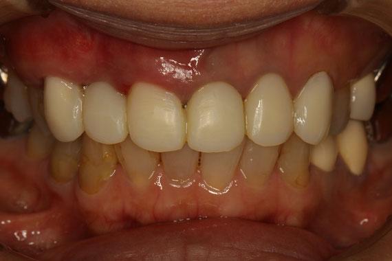 下がった歯茎を再生した状態