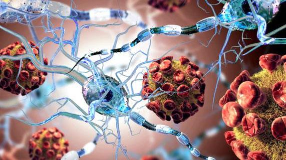 Nervenverbindungen werden bei MS-Patienten beschädigt.