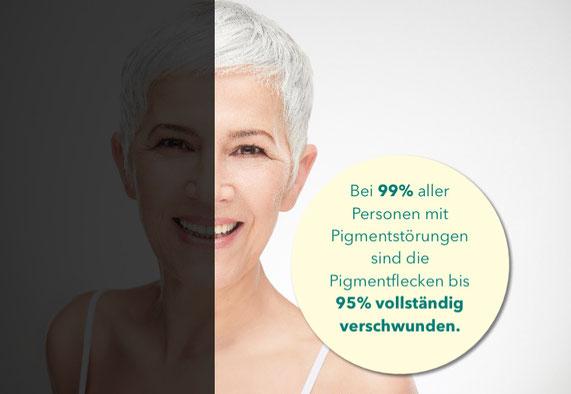 Cosmelan ist eine Kosmetikbehandlung gegen Pigmentflecken der Haut, der Marke Silk Med, Depigmentierungsbehandlung, Entfernung von Pigmentflecken, Vitaface Kosmetik Hamburg, apparative Kosmetik, Beauty-Treatments, Wirkstoffkosmetik Hamburg, Anti- Aging HH