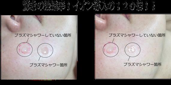 札幌 豊平 清田 肝斑 プラズマシャワー 毛穴 透明感 くすみ 目元