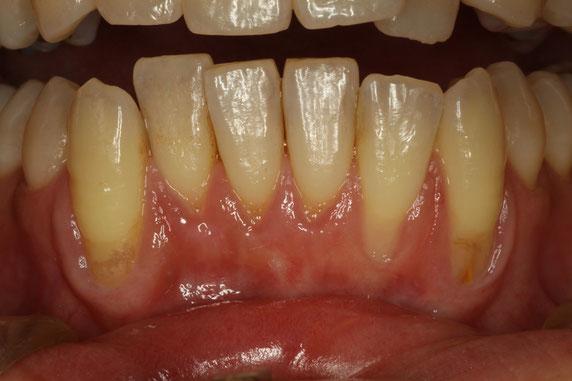 歯茎が下がって歯の根っこが露出しています.