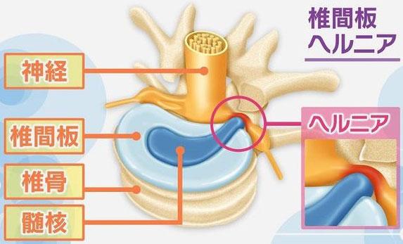 腰椎ヘルニアの分類図