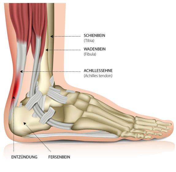 Dr. Marquardt - Sehnenexperte, Achilessehne, Achilessehnenschmerzen, Anatomie, Stoßwelle