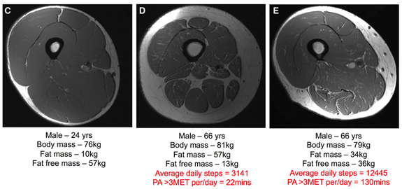 muscle of young, old inactive and old active people. healthy aging, strength and longevity
