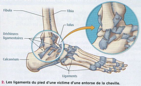 Les blessures ligamentaires. Source : Belin SVT p241.