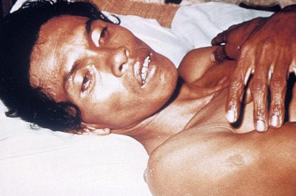Mensch mit Cholera Patient