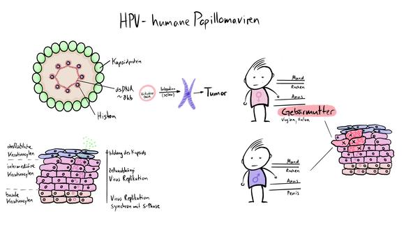 Tafelbild zum Humanen Papillomavirus HPV welches die Entstehung von Krebs der verschiedenen Organe visualisiert.