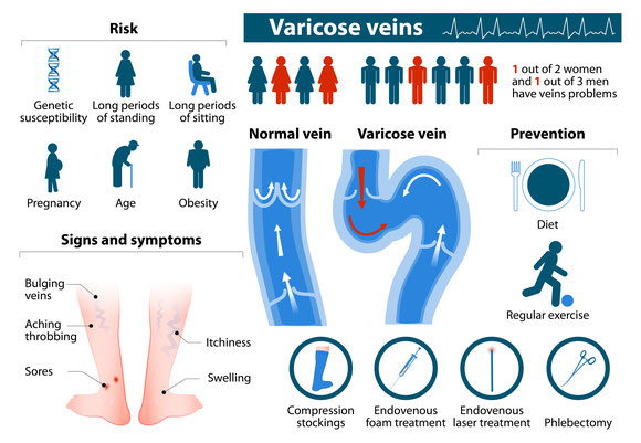 Genetic, long periods of standing, long periods of sitting, pregnancy, age, obesity are all causes of varicose vein disease.