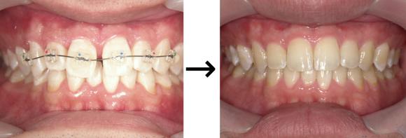 上顎正中離開の前歯だけ矯正症例