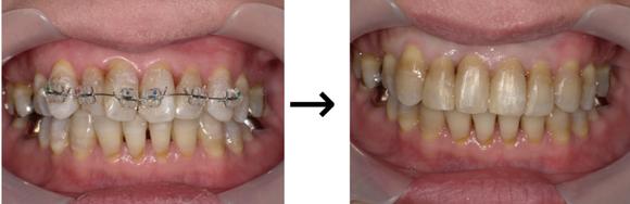 上顎2番の舌側転位の前歯だけ矯正症例