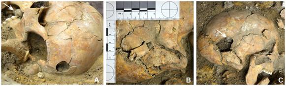 (A) Trou du projectile, (B) Rupture des os du crâne, (C) Le soldat avait encore dans la bouche le projectile qu'il allait utiliser. Crédit : N. Nicklisch