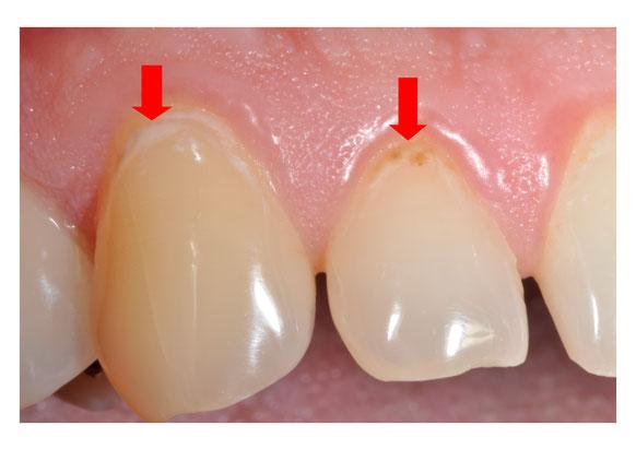 Säure greift den Zahn an.