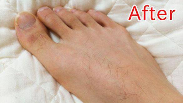 足の甲の毛(減毛後)