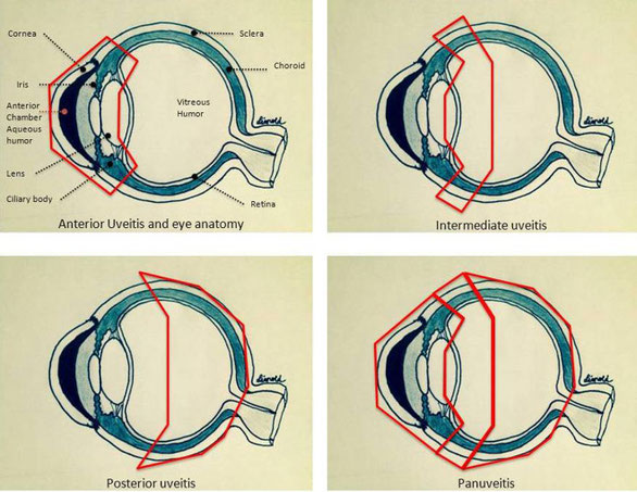 図3:ぶどう膜炎の分類1)