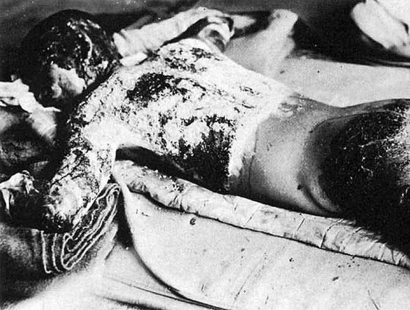 Opfer der Atombombe Hiroshima