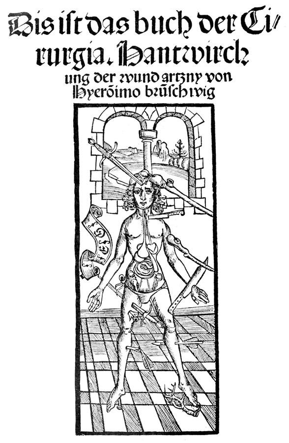 """Titelblatt der Straßburger Drucke der Chirurgie Brunschwigs vom Jahr """"1397"""" und 1497."""