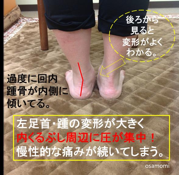 回内足で内くるぶし下が痛い。足膝専門、昭島市のオサモミ整体院。