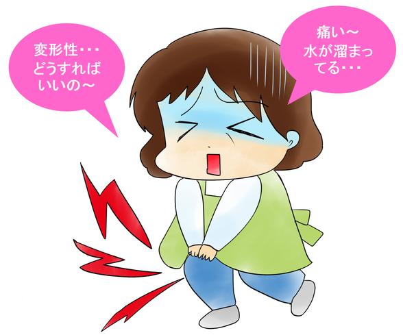 オサモミ整体院  ひざ痛 変形性膝関節症