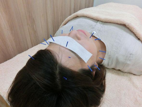 顔鍼(美容鍼)の様子です 専用の細い鍼を使用しますので痛みも感じることはありません